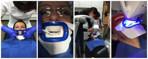 Veilig tanden bleken Tandarts Vos Weert